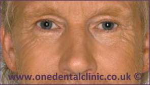 1-botulinum-toxin-before