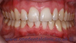1-damon-braces-after
