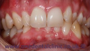 1-damon-braces-before