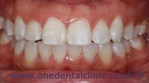 1-dental-fluorosis-after