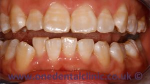 1-dental-fluorosis-before