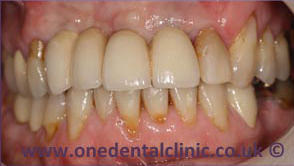 1-dental-implant-after