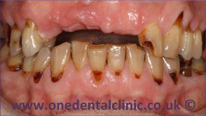 1-dental-implant-before