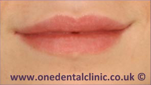 1-dermal-fillers-after
