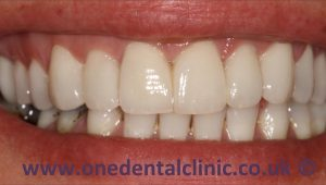 1-porcelain-veneers-after