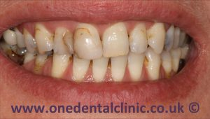 1-porcelain-veneers-before