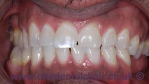 1-teeth-whitening-after