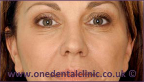 2-botulinum-toxin-before
