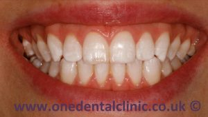 2-dental-fluorosis-after