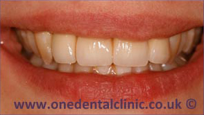 2-dental-implant-after