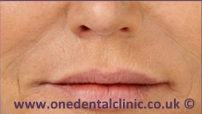 2-dermal-fillers-after