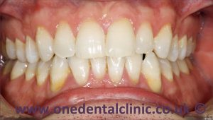 2-teeth-whitening-after