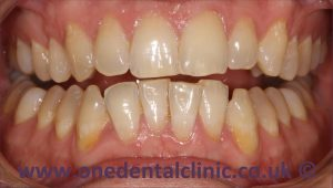 2-teeth-whitening-before