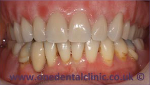 3-dental-implant-after