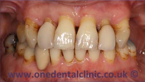 3-dental-implant-before
