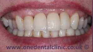 4-dental-implant-after