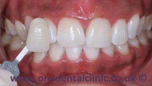 4-teeth-whitening-after