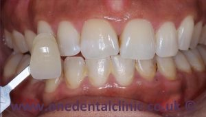 4-teeth-whitening-before