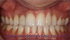5-dental-implant-after