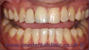 5-dental-implant-before