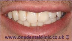 6-dental-implant-after