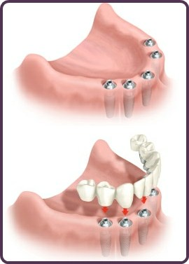 Lower Arch Dental Implants