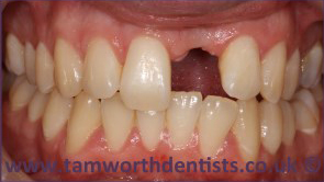 1-Dental-crowns-before