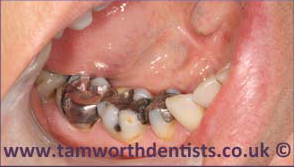 1-Amalgam-removal-before