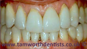 1-Gum-Disease-after