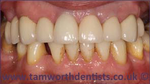 2-Dental-crowns-after