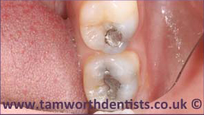 2-Amalgam-removal-before