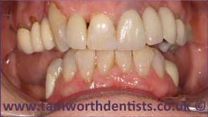 2-Dental-bridges-after