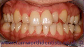 2-invisalign-before