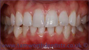 3-invisalign-after