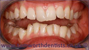 3-invisalign-before