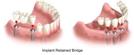 Can dental implants be bridged?