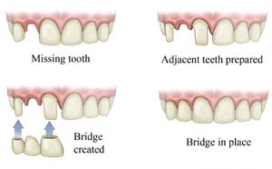 What material are dental bridges made from
