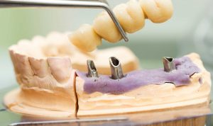 dental-implants-header