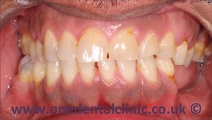 1-teeth-whitening-before