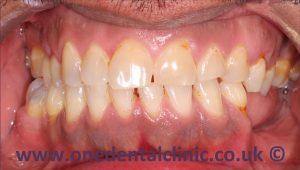 1-teeth-whitening-before