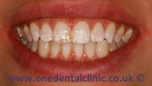 2-dental-fluorosis-before