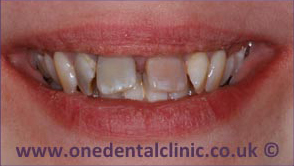 2-dental-implant-before