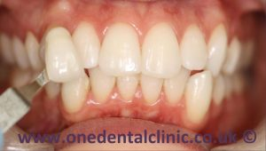 3-teeth-whitening-after