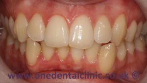 3-teeth-whitening-before
