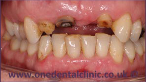 4-dental-implant-before