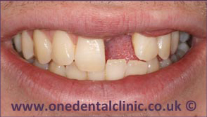 6-dental-implant-before