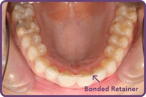 bonded-retainers