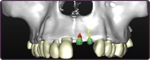 Bone grafting for Dental Implants CT scan