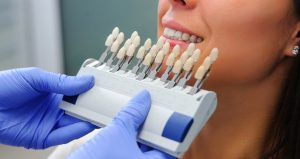 cosmetic-dentistry-header