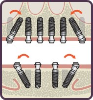 dental Implants by Dentsply